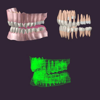 set teeth gums 3d model