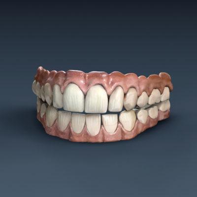 3d model human teeth gums
