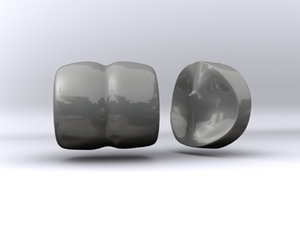 artificial knee implant 3d model
