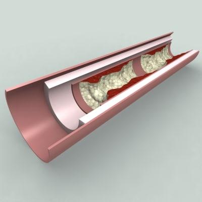 3d artery profile