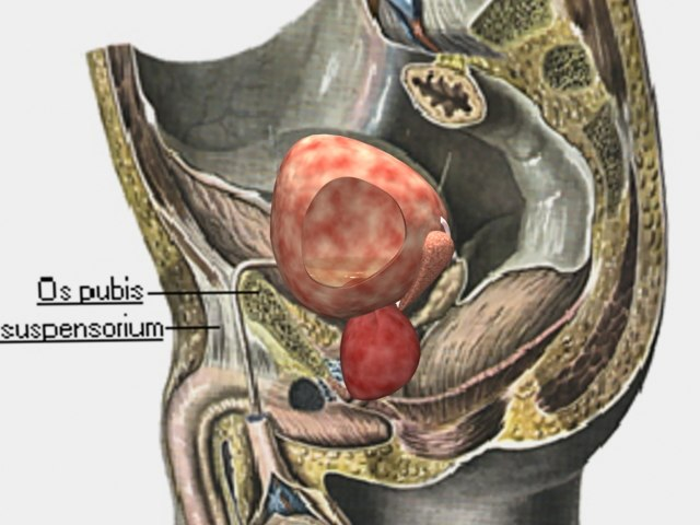 3ds max urinary bladder