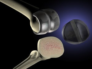 knee replacement 3d model
