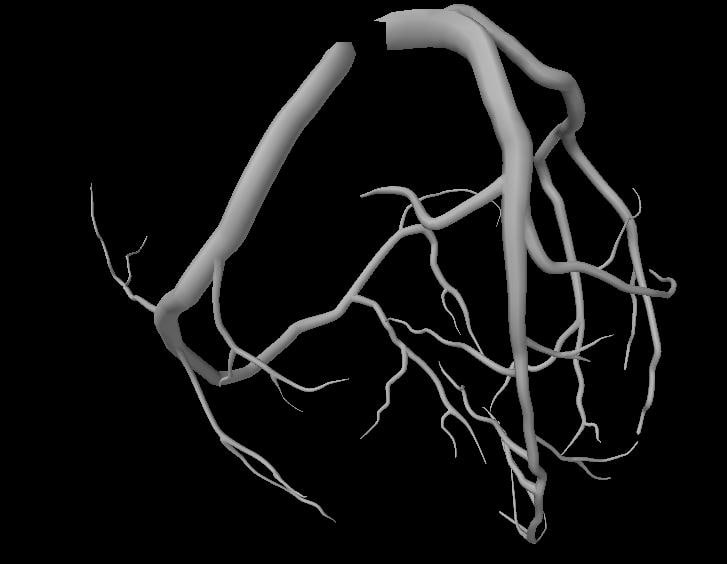 3d coronaries arteries