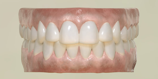 3D teeth