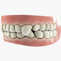 3D teeth gums tongue model