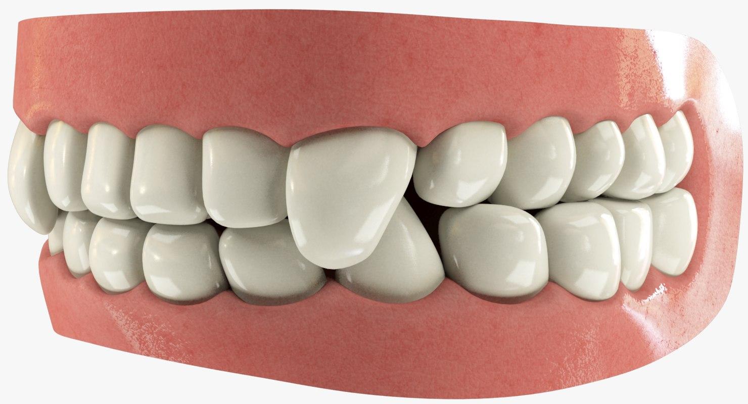 teeth gums tongue 3D model