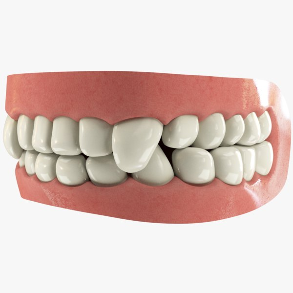 teeth gums tongue 3D model