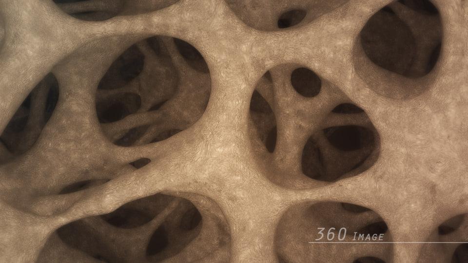 3D bone structure 360