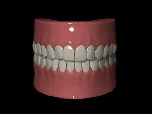 3D denture zbrush