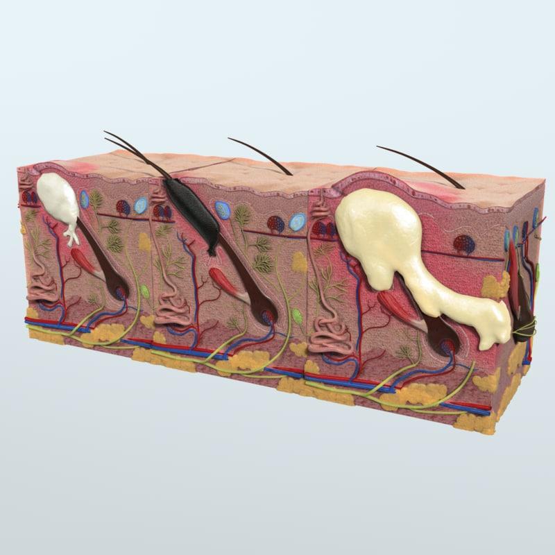 Realistic Skin Acne Anatomy 3d Model Turbosquid 1164399