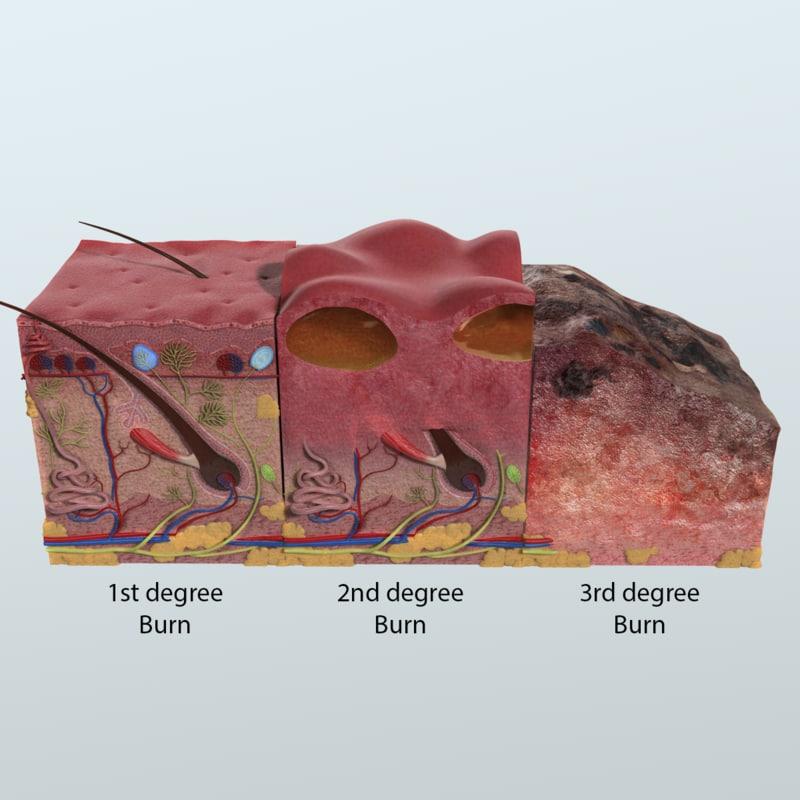 3D model realistic skin anatomy - TurboSquid 1164416
