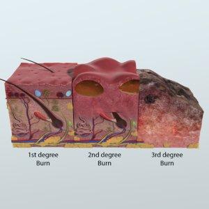 3D model realistic skin anatomy
