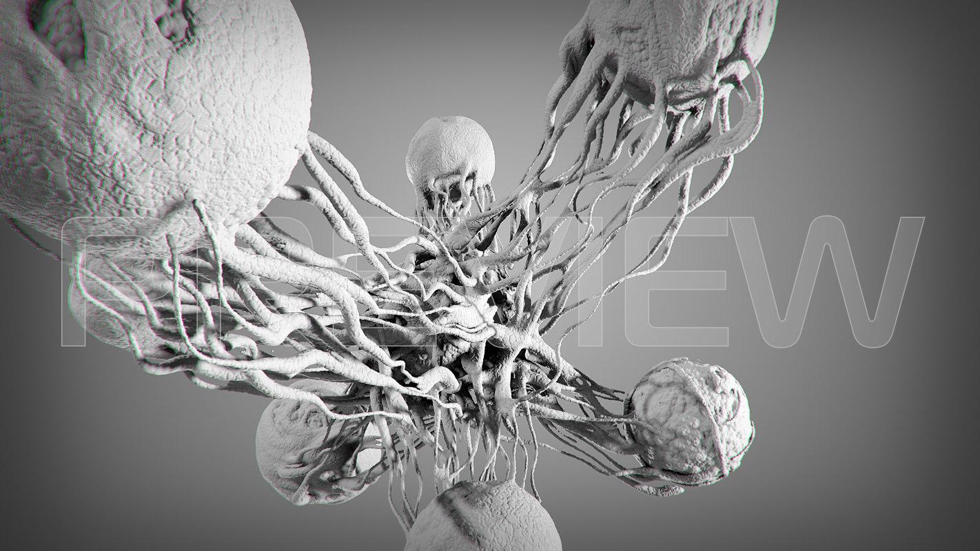 cancer stl 3D model