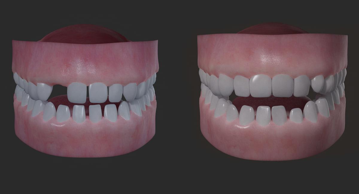 3D realistical children mouth