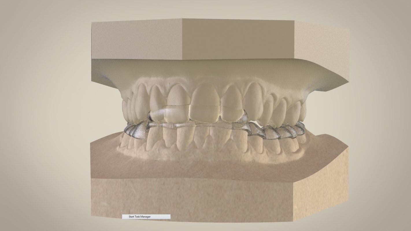 superior splint 3D model