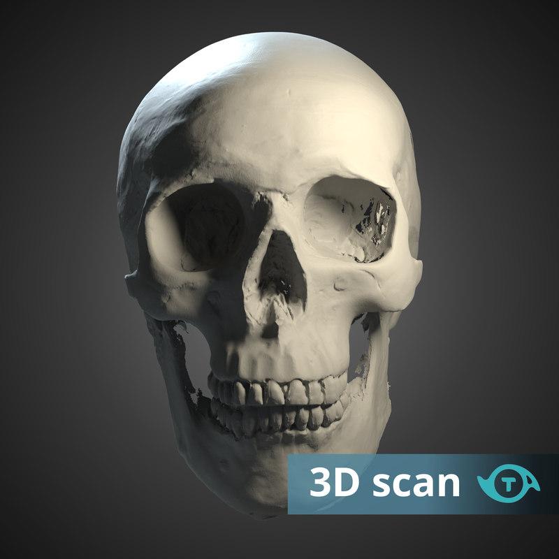 3D scan human skull