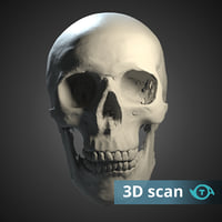 Human scull simple scan