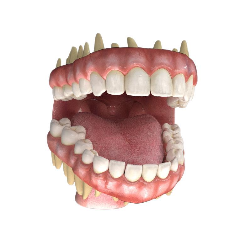 3D dentures teeth gums