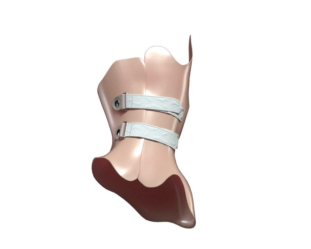 3D scoliosis corset model