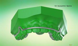 digital ortho kois deprogrammer 3D model