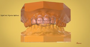 digital anti-migraine appliance 3D model