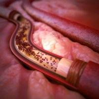 3D artery atherosclerosis model
