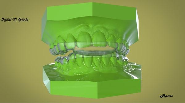 3D digital b splints model