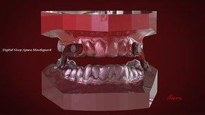 3D digital sleep apnea mouthguard model
