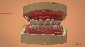 3D digital dentures