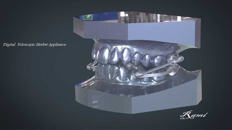 digital telescopic herbst appliance 3D model
