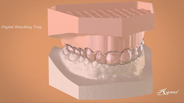 3D digital bleaching tray