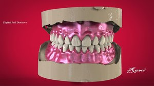 3D model digital dentures printing milling