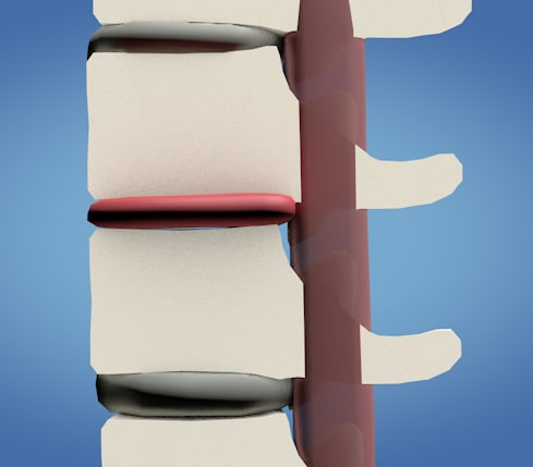 spine compression model