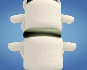 3D spine compression