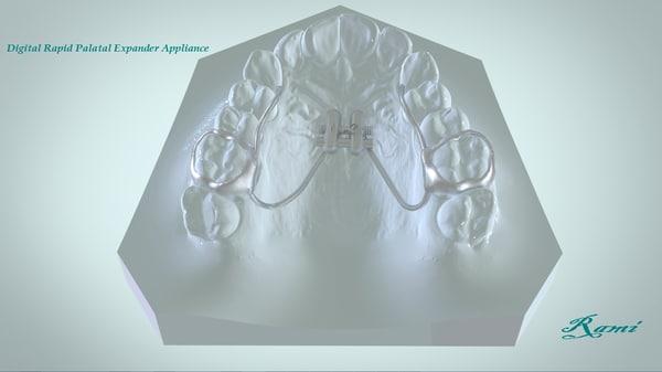 3D model digital rapid palatal expander