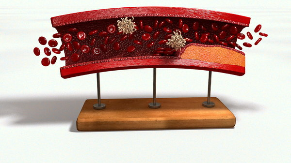 3D sclerotic plaque vessel model