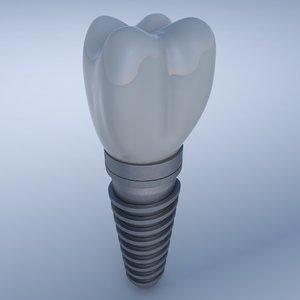 dental implant 3D model