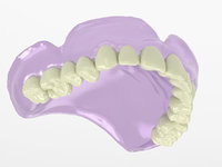 Upper Denture High Res