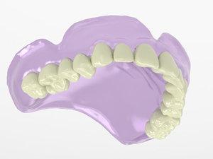 3D upper denture model