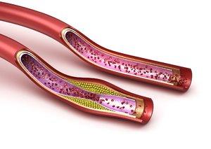 3D blood vessel : normal model