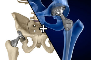 3D hip replacement implant installed model