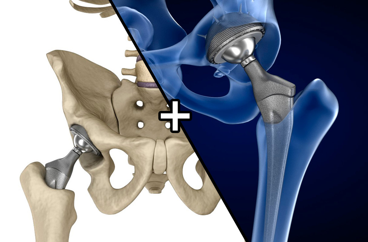 Hip joint. Replacement with implant