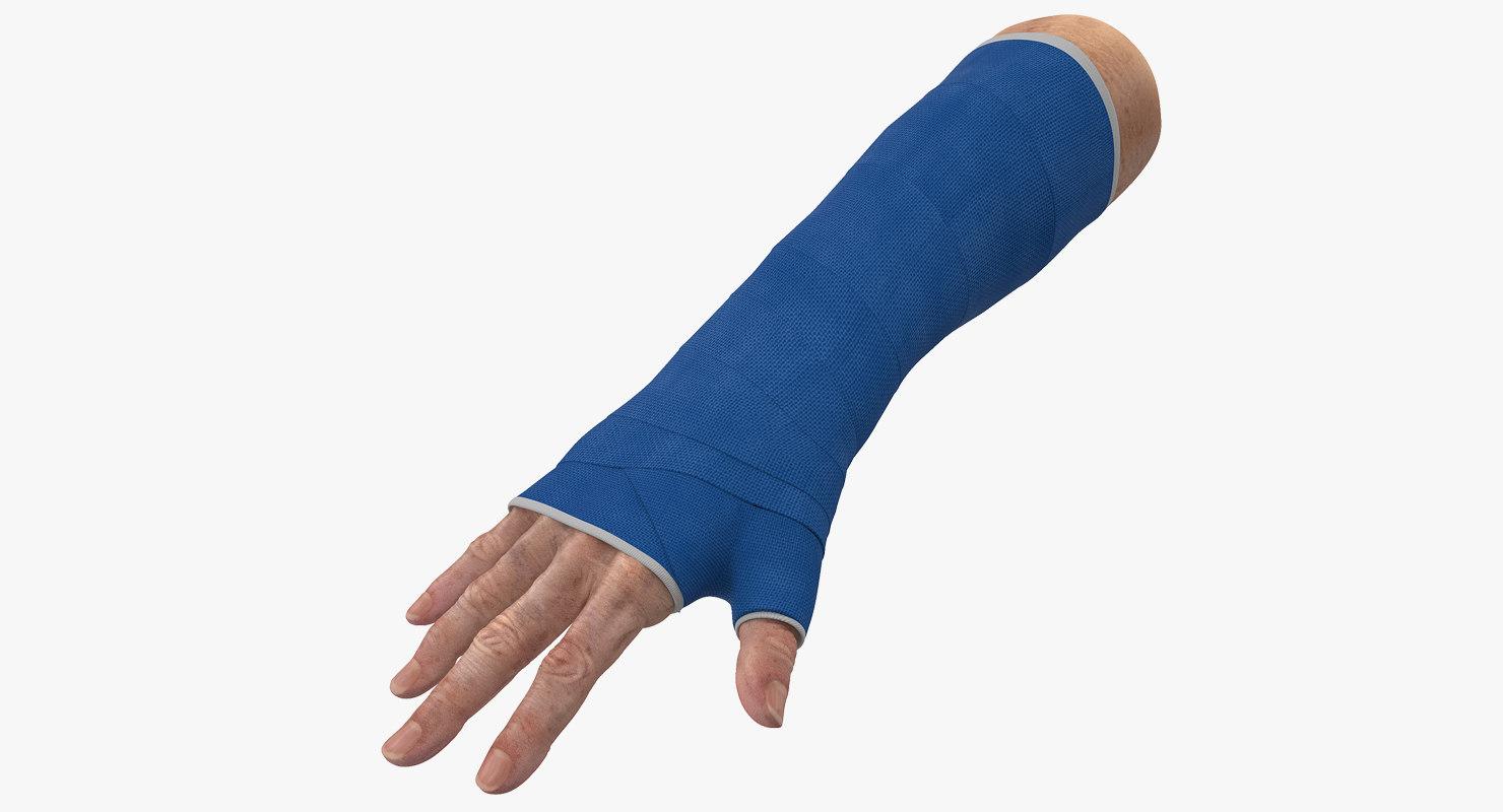 fiberglass cast wrist model turbosquid 1230113