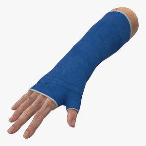 fiberglass cast wrist model