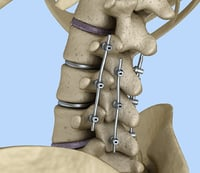 Spinal fixation system - titanium bracket