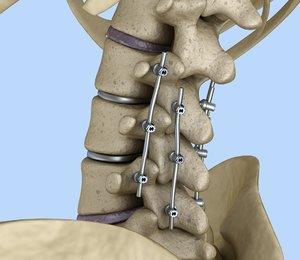 3D model spinal fixation - titanium