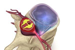 3D hernaited disc human spine