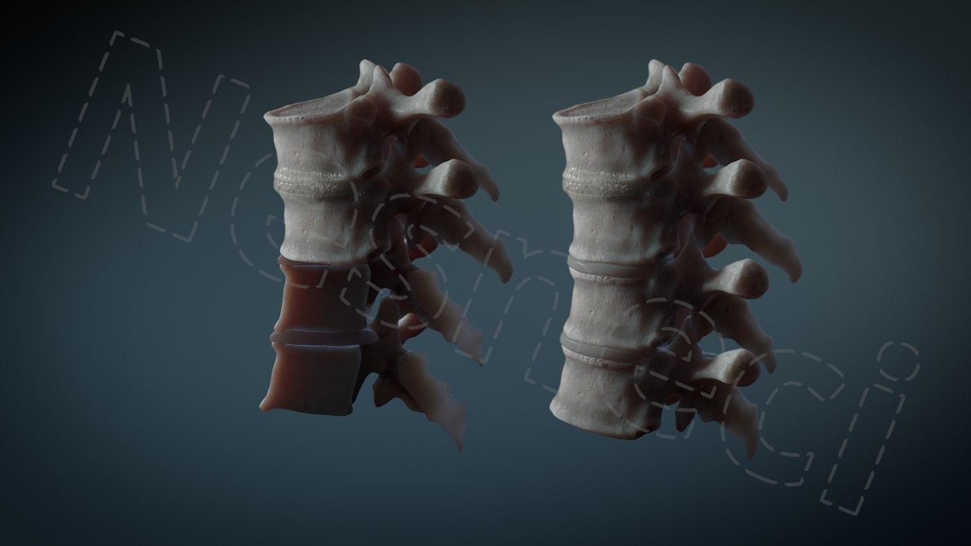 3d Human Vertebrae T6 Cross Section Turbosquid 1239928