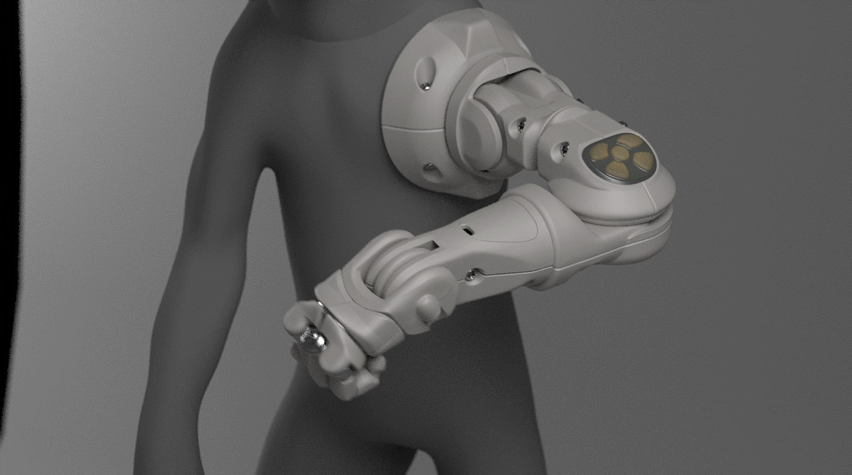 prosthetic arm 3D
