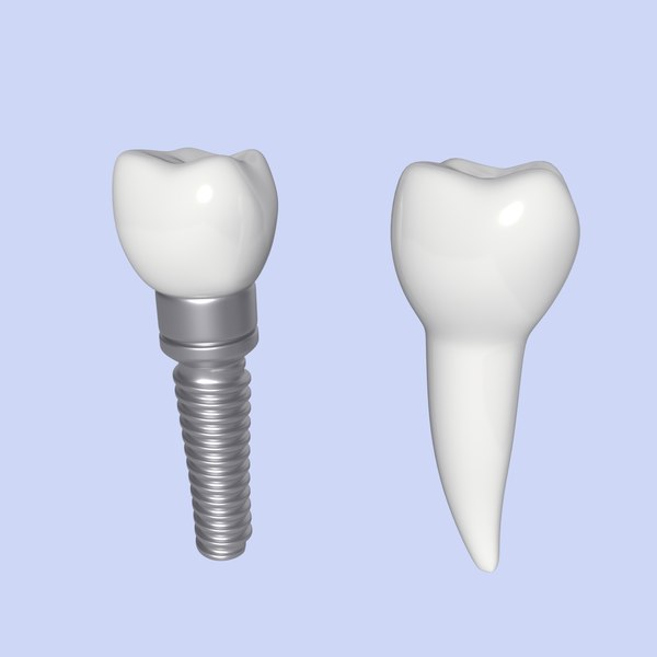 tooth implant 3D model